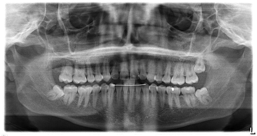 The hygienist told me that I did a good job after this X-ray, so please endorse me for that skill on LinkedIn.